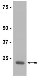 AP32596SU-N - Peroxiredoxin-2 / PRDX2