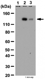 AP32617PU-N - Tyrosine-protein kinase JAK2