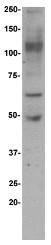 AP32657PU-N - ADAM12 / MLTN
