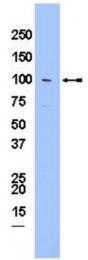 AP32677PU-N - LPIN1 / Lipin-1