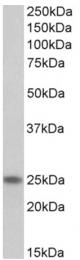 AP32709PU-N - Skeletal muscle Troponin I