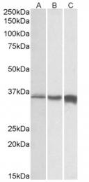 AP32711PU-N - Fast skeletal muscle Troponin T