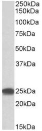 AP32717PU-N - PSMB4 / PROS26