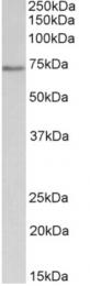 AP32719PU-N - CDC6
