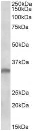 AP32727PU-N - Interleukin-33 (IL33)