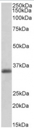 AP32736PU-N - MDH1