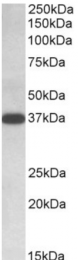 AP32798PU-N - Isocitric dehydrogenase alpha / IDH3A