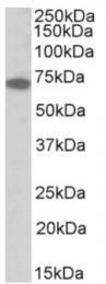 AP32813PU-N - IFNAR1