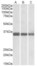 AP32816PU-N - MDH1