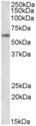 AP32818PU-N - PLK1