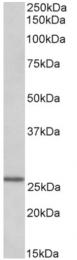 AP32820PU-N - LAT2 / WBSCR15
