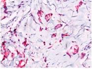 AP32836PU-T - Catenin beta-1