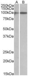 AP32955PU-N - HIC1 / ZBTB29