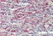 AP33007PU-N - Stabilin 1 / STAB1