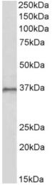 AP33020PU-N - HOXC10 / HOX3I