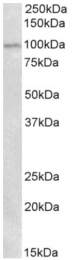 AP33022PU-N - Autotaxin / ENPP2