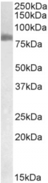 AP33115PU-N - Transglutaminase-2 (TGM2)