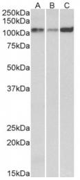 AP33121PU-N - ATP2A2 / SERCA2
