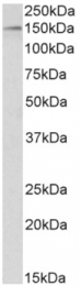 AP33144PU-N - HDAC6