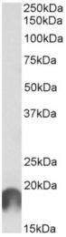AP33149PU-N - APC11 / ANAPC11