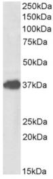 AP33153PU-N - FOXF1 / FKHL5