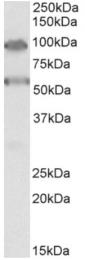AP33164PU-N - TBC1D9