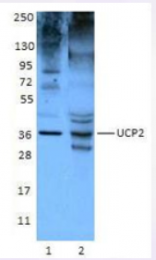 AP33166PU-S - SLC25A8 / UCP2