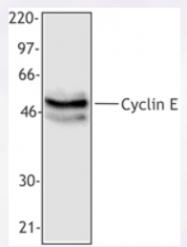 AP33174PU-N - Cyclin E1