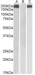 AP33184PU-N - Thrombospondin-1 (THBS1)