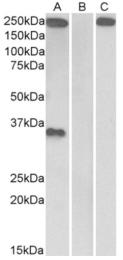 AP33185PU-N - Thrombospondin-1 (THBS1)