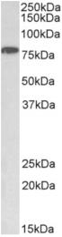 AP33187PU-N - IKKA