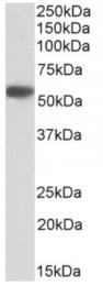 AP33193PU-N - Alpha-1-antitrypsin