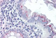 AP33202PU-N - FPR2 / FPRL1