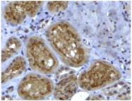 AP33234PU-N - Collagen type IV alpha 3 chain