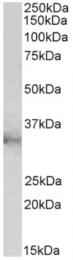 AP33241PU-N - CLIC1