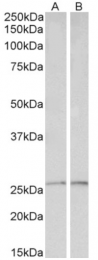AP33242PU-N - Peroxiredoxin-6 / PRDX6
