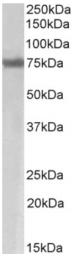 AP33246PU-N - MARCH7 / RNF177