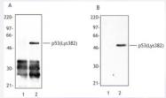 AP33256PU-S - TP53 / p53
