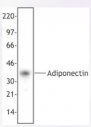 AP33258PU-N - Adiponectin