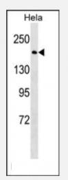 AP33262PU-N - BRCA1 / RNF53