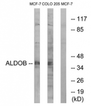 AP33266PU-N - Aldolase B / ALDOB