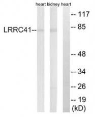 AP33268PU-N - LRRC41