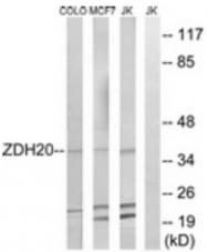 AP33275PU-N - ZDHHC20