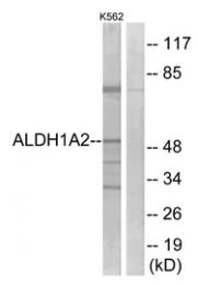AP33281PU-N - ALDH1A2 / RALDH2