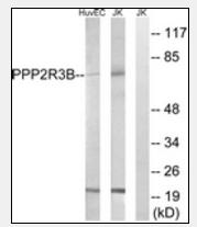 AP33283PU-N - PPP2R5D