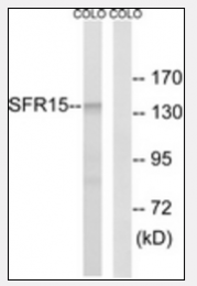 AP33284PU-N - SCAF4 / SFRS15