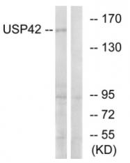 AP33286PU-N - USP42