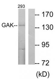 AP33290PU-N - GAK