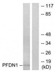 AP33291PU-N - PFDN1