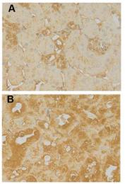 AP33335SU-S - Matrix Gla Protein
